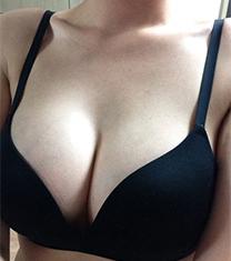 韩国MBW整形外科魔滴假体隆胸效果对比图