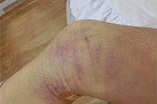 女孩韩国美线大腿抽脂的亲身经历,危害反粗痛苦都可避免