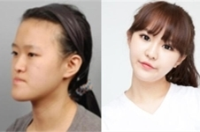 韩国profile整形优势分析,曾为let美人主刀手术!