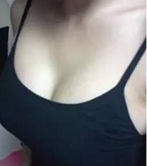 邯郸雅丽整形医院假体隆胸手术案例