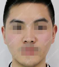 武汉爱思特玻尿酸面部填充案例