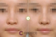 韩国鼻梁歪矫正多少钱可以做?手术怎么进行危害大吗?