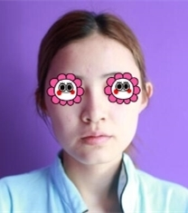 郴州瑞澜医院鼻综合整形前后对比照片