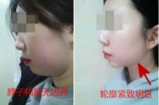 去颊脂垫脂瘦和面吸该怎么选?在韩国有做去颊脂垫医院吗?