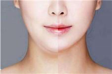 面部吸脂做完7天图片什么样?医生建议可以正常上班吗?