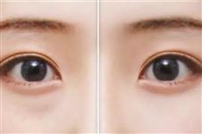 韩国无痕去眼袋另有别名,眼底脂肪排列明星都在用!