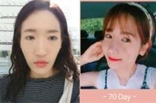 韩国EU整形外科长脸双鄂手术真人案例公开,术后效果超惊艳