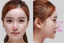 韩国做鼻中隔隆鼻可以修复吗,修复常用什么材料不发炎?