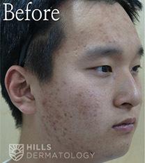 韩国Hills希尔皮肤科男士痘肌护理全过程