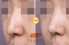 韩国cocoline和高诺鼻谁做驼峰鼻改善更明显?