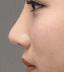 韩国延世PLUS整形医院隆鼻手术对比案例_术后