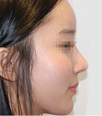 韩国延世PLUS整形医院面部填充手术案例_术后