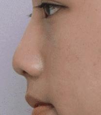 韩国延世PLUS整形医院隆鼻手术对比案例_术前