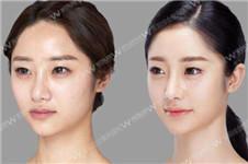 下颌缘吸脂后下唇会松弛吗?哪几个因素决定下垂?