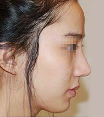 韩国延世PLUS整形医院面部填充手术案例_术前