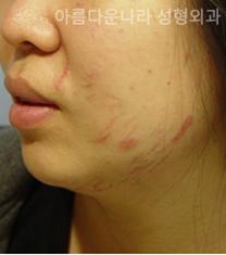 韩国吴金斯整形医院面部吸脂手术对比案例