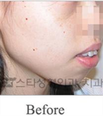 韩国明星整形外科突嘴矫正案例