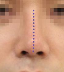 韩国延世PLUS整形医院歪鼻矫正手术案例_术后
