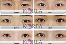 韓國KOREA醫院擅長手術項目有哪些?