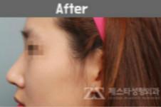 驼峰鼻手术费用多少钱,10000够不够矫正?