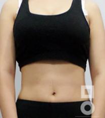 韩国美尔韩整形医院吸脂瘦身对比案例