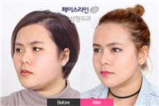 去韩国做鼻综合和眼综合需要多少钱 海量真实案例解答