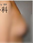 韩国BR整形外科医院-乳房下垂矫正手术案例