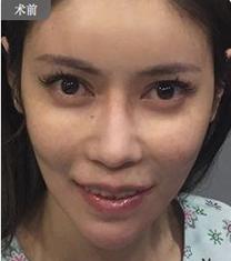 韩国UC首尔牙科医院突嘴矫正手术案例