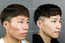 崔荣达和朴兴植擅长哪些整形手术,下颌角和轮廓手术选谁?