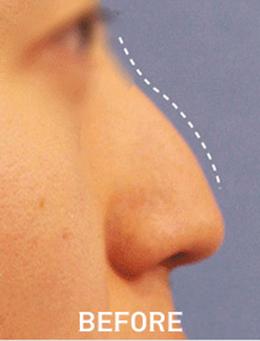 韩国lucea整形医院鼻部矫正手术对比案例_术前