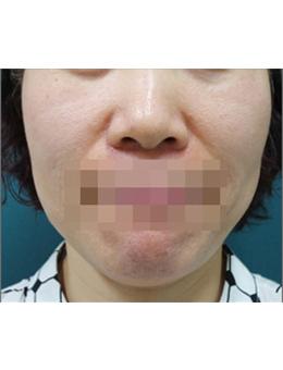 韩国lucea整形医院面部提升手术案例_术前