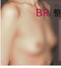 韩国BR整形外科医院-假体隆胸手术案例