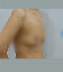 韩国友珍整形-韩国友珍整形自体脂肪隆胸对比案例