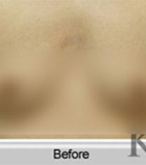 韓國KOREA-韓國korea整形醫院假體隆胸對比案例