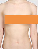 胸部缩小整形对比案例