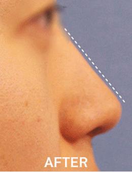 韩国lucea整形医院鼻部矫正手术对比案例_术后