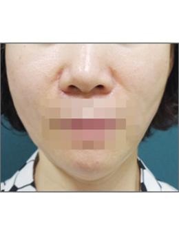 韩国lucea整形医院面部提升手术案例_术后
