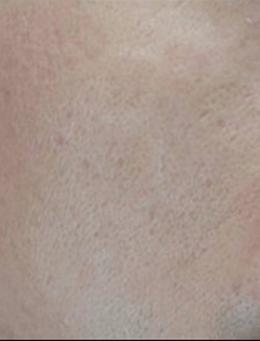 韩国lucea整形医院面部祛疤手术对比案例_术后