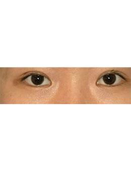 韩国lucea整形外科眼部手术对比案例_术后
