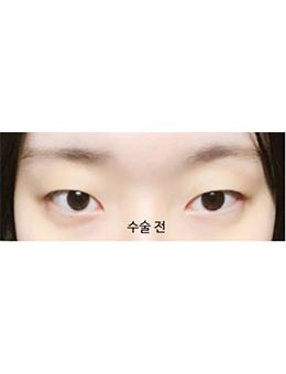 韩国美丽的人双眼皮手术惊艳案例对比_术前