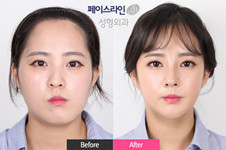 LET美人经典案例曝光,带你解析韩国菲斯莱茵手术风格!