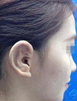 上海东方丽人整形医院小耳畸形矫正对比_术后