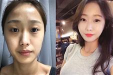 网友分享:在韩国ID做vline+颧骨缩小+脂肪填充的整形经历