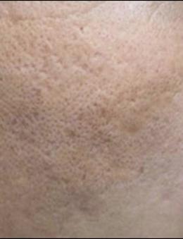 韩国lucea整形医院面部祛疤手术对比案例_术前