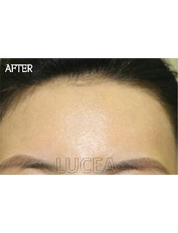 韩国lucea整形外科额头填充手术对比案例_术后