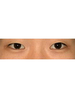韩国lucea整形外科眼部手术对比案例_术前