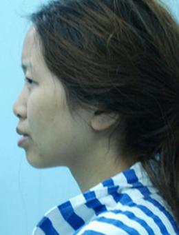 韩国Theone整形医院鼻部整形手术对比案例_术前