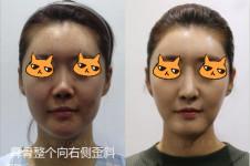 歪鼻手术矫正驼峰多少钱,韩国做是不是比国内好
