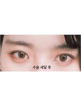 韩国美丽的人双眼皮手术惊艳案例对比_术后