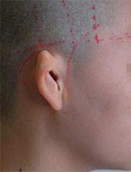 上海东方丽人整形医院小耳畸形矫正对比_术前